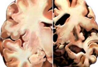 علایم اولیه آلزایمر