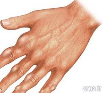 بیماری نقرس مفصلی