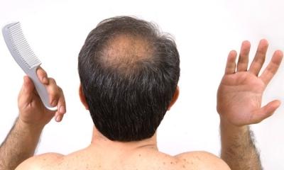 درمان خانگی ریزش مو