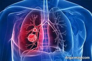 روش های درمان سرطان ریوی