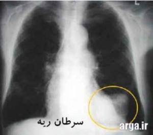 ریه و سرطان آن