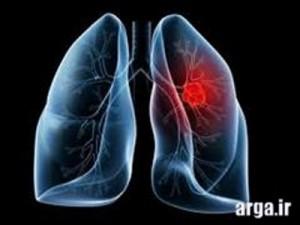 سرطان ریه