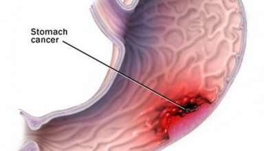علایم سرطان معده