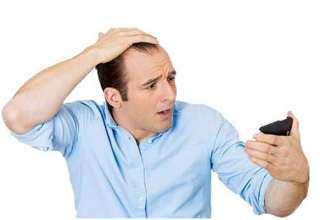 درمان قطعی ریزش موی اقایان