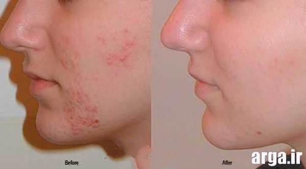 ماسک صورت برای رفع جوش و ضایعات پوستی