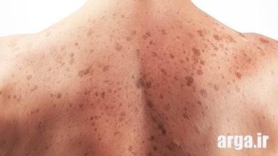 سرطان پوست