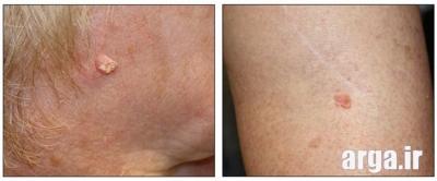 نواحی سرطانی پوست