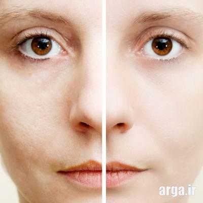 پوست صورت و منافذ