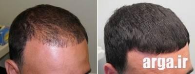 داروهای درمانی ریزش مو در مردان