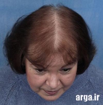 روش های جدید درمانی ریزش مو