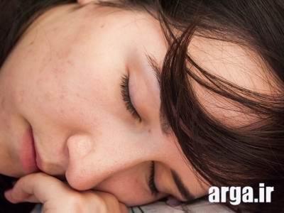 خواب و تقویت چشم