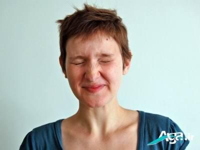 علت تلخی دهان
