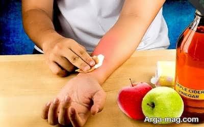 درمانهای خانگی سوختگی