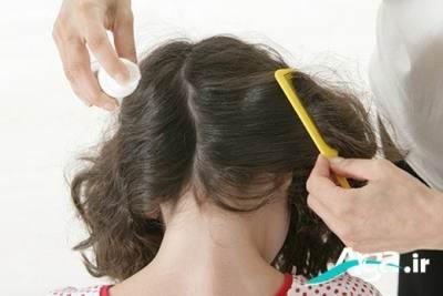 درمان های خانگی شپش سر