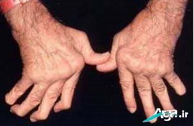 روماتیسم مفصل دست