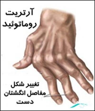 بیماری های مفصل