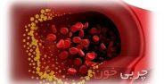 چربی خون