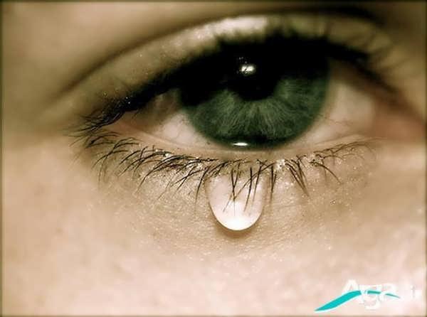 چشم گریان زن
