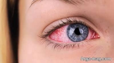 درمان قرمز شدن چشم ها با روش های طبیعی