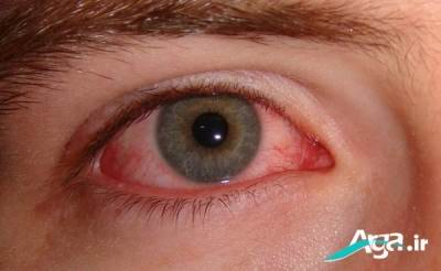 درمان التهاب و قرمزی چشم