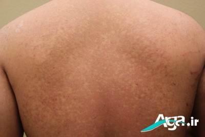 درمان قارچ پوستی