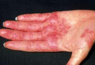 کاهش و تسکین علایم اگزما