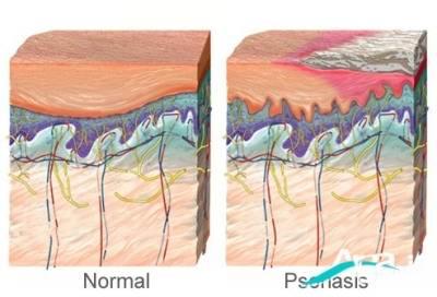 بیماری پوستی پسوریازیس