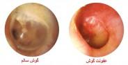 علل عفونت در گوش