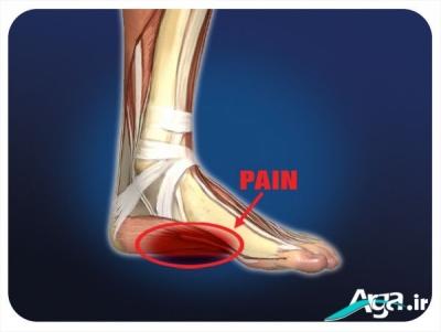 علت درد کف پا