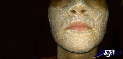 ماسک عسل و آسپرین