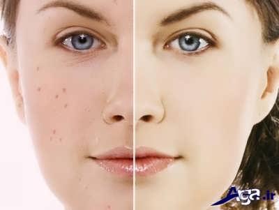 درمان جای جوش صورت با روش های خانگی