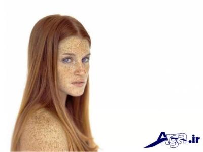 درمان لکه های قهوه ایی پوست