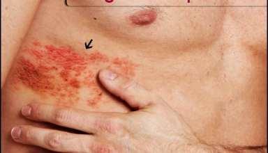 بیماری پوستی زونا