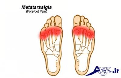 بیماری Metatarsalgia