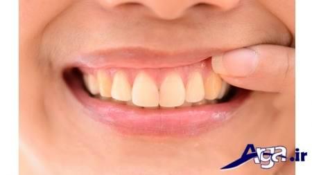 عوامل ایجاد عفونت دندان