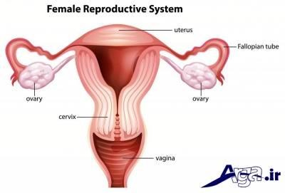 درمان کیست تخمدان