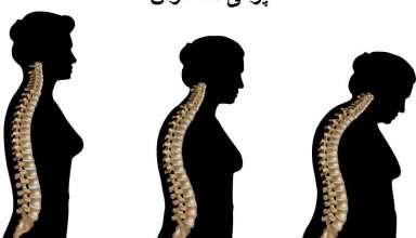 پوکی استخوان در زنان