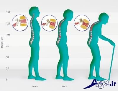 علایم پوکی استخوان