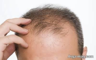 فواید بلوط بر سلامت مو