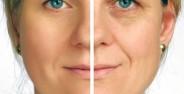 افشای 7 راز برای جوان ماندن پوست صورت