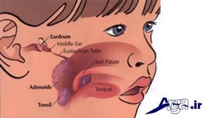 وظیفه لوزه ها در بدن کودکان چیست؟