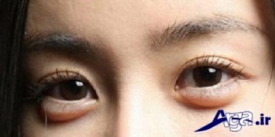 علت پف زیر چشم