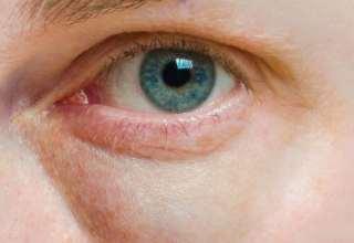 ویتامین های مهم و ضروری برای سلامت چشم
