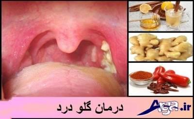 درمان گلو درد