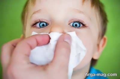 روش های درمان گرفتگی بینی کودک