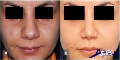 روش های درمانی گودی زیر چشم