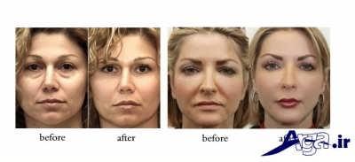 روش های مختلف درمانی گودی زیر چشم