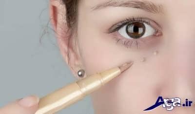 کرم و درمان مناسب گودی زیر چشم