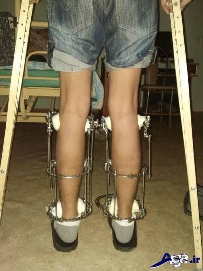 عمل جراحی و افزایش قد