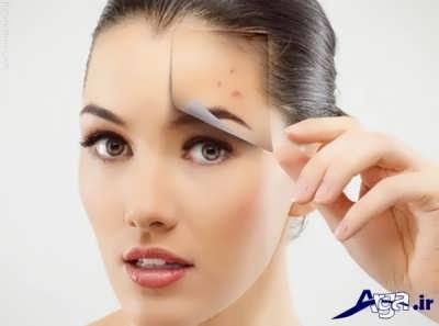 روش های طیبیع برای از بین بردن حای جوش صورت